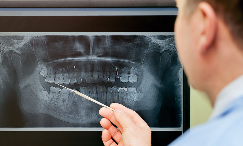 Doctor reviewing x-ray before wisdom tooth removal - Stanislaus Oral Surgery Modesto, CA