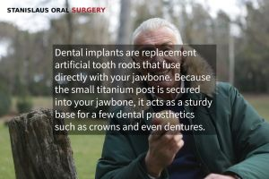 Dental Implant Procedure Modesto, CA
