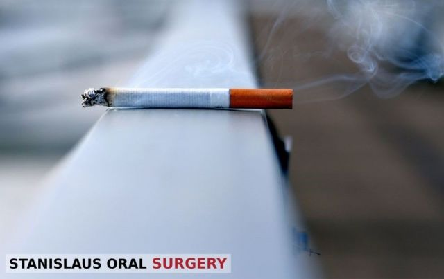 A cancer-causing cigarette lying on a ledge - Modesto, CA